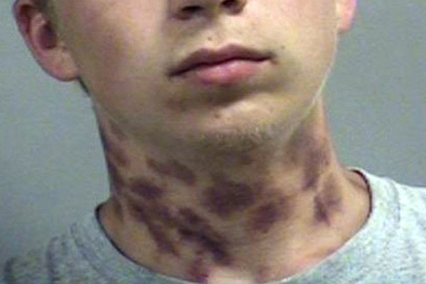 Kentucky Hickey King Arrested For Trespassing